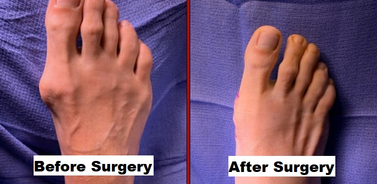 How to Get Smaller Feet with Surgery