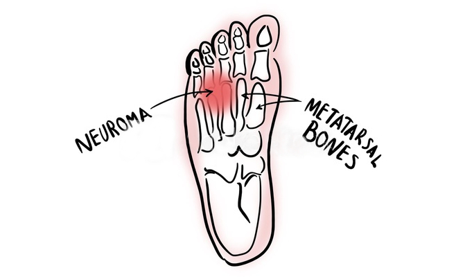 How Long Does Morton's Neuroma Last