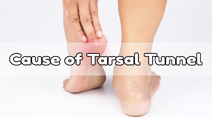 Couse of Tarsal Tunnel
