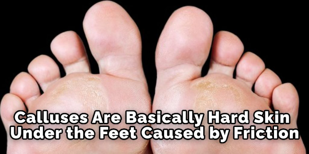 Calluses Are Basically Hard Skin Under the Feet Caused by Friction